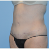 55-64 year old woman treated with Liposuction Revision
