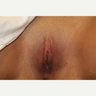 35-44 year old woman treated with Labiaplasty