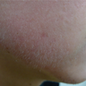 Early acne scars treated with eMatrix