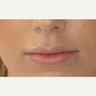 24 year old woman treated with Lip Augmentation