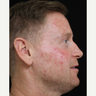 35-44 year old man treated with Photodynamic Therapy