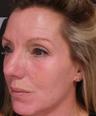 Non-surgical skin resurfacing treatment at Revere Clinics