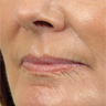 55-64 year old woman treated with Wrinkle Treatment
