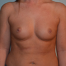 25-34 year old woman treated with Breast Reconstruction