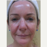 Laser resurfacing with Scion erbium laser