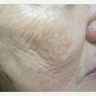 55-64 year old woman treated with Fractora RF for cheek wrinkles