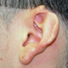 18-24 year old man treated with Ear Reconstructive Surgery