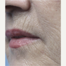 65-74 year old woman treated with Fractora RF for perioral wrinkles