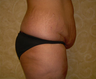 This patient is 36 years old 5'9 and 185 lbs. She chose a tummy tuck with liposuction.