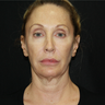 55-64 year old woman treated with Infini RF