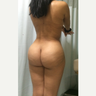 27 y.o. woman recently treated with Lipo + Dominican Butt Lift (inverted heart shape butt)
