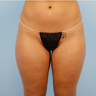 25-34 year old woman treated with Liposuction Revision