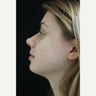 25-34 year old woman treated with Acne Scars Treatment VBEAM and eMatrix