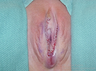 Woman treated with Labiaplasty