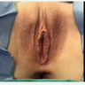 25-34 year old woman treated with Vaginal Rejuvenation