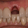 35-44 year old man treated with Dental Implants