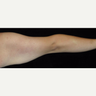 26 year old man treated with Arm Lift