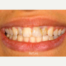 Full porcelain crowns - Tooth whitening was done to brighten up the smile