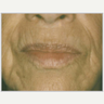 65-74 year old woman treated with ProFractional Laser