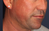 55-64 year old man treated with Acne Scars Treatment
