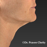 55-64 year old woman treated with Exilis