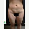 25-34 year old woman treated with Smart Lipo