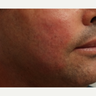 35-44 year old man treated with Acne Scars Treatment with Bellafill