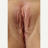45-54 year old woman treated with Vaginal Rejuvenation