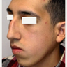 18-24 year old man treated with Orthognathic Surgery