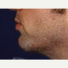 Radiesse Chin Filler Injection 25-34 Year Old Male