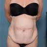 43 year old woman treated with a Circumferential Abdominoplasty and Rectus Repair