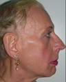 45-54 year old woman treated with Facial Feminization Surgery