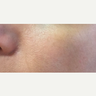 35-44 year old woman treated with Q-Swithced Yag Laser for Sun Spots and Pores