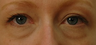 35-44 year old woman treated with Eye Bags Treatment