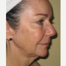 Laser resurfacing with Sciton erbium laser