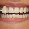 35-44 year old woman treated with Zoom Whitening