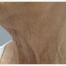 65-74 year old woman treated with Fractora RF for loose neck skin tightening