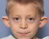 6 year old boy treated with Ear Surgery