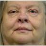 55-64 year old woman treated with Facial Reconstructive Surgery following Mohs