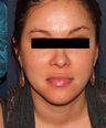 Uneven skin tone treated with PicoWay laser