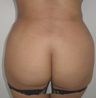 25-34 year old woman treated with Brazilian Butt Lift