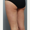 Cellulaze - 34 year old female, 2 months post-op