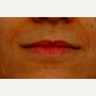 35-44 year old woman treated with Lip Augmentation