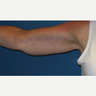 45-54 year old woman treated with Arm Lift