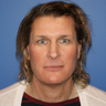 45-54 year old male treated with Facial Feminization Surgery