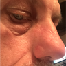 45-54 year old man treated with Scars Treatment of nasal area after skin cancer removal
