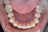 Severe Crowding and Crossbite Treated with Invisalign