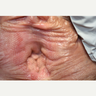 55-64 year old woman treated with MonaLisa Touch