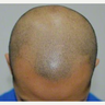 35-44 year old man treated with Scalp Micropigmentation