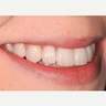 55-64 year old woman treated with Veneers